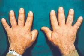 Manos de un paciente: se observa el ensanchamiento de los dedos