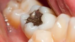 La capacidad de regeneración natural de los dientes es limitada.