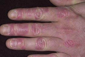 Psoriasis,una enfermedad crónica que afecta cada vez a más personas