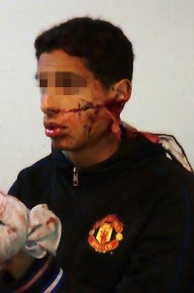 Uno de los heridos