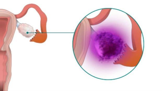 El cáncer de ovario se da en más de 2200 mujeres cada año en el país