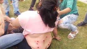 Una trabajadora sufrió gran cantidad de impactos de balas de goma