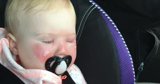 Una madre difundió un mensaje de precaución para otros padres luego de que su hija sufriera quemaduras por un protector solar