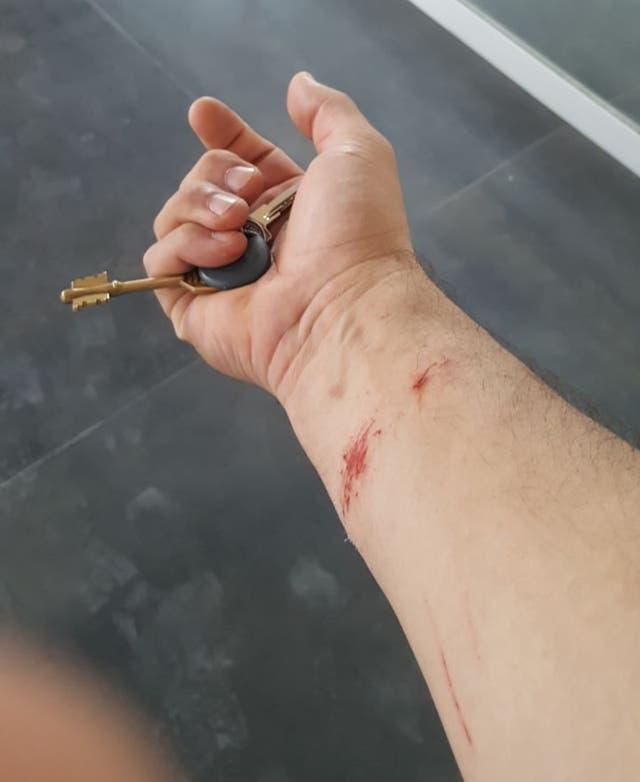 Una de las víctimas resultó con cortes en los brazos
