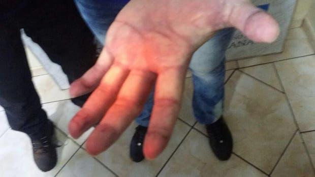 Pérez Corradi habría pagado 50 mil dólares para borrarse las huellas dactilares.