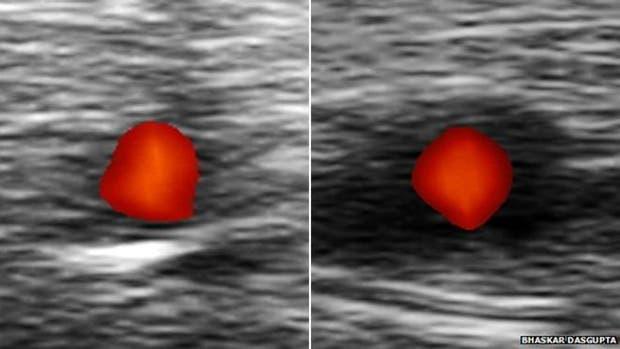 A la izquierda se ve una arteria sana. A la derecha una afectada por arteritis de células gigantes