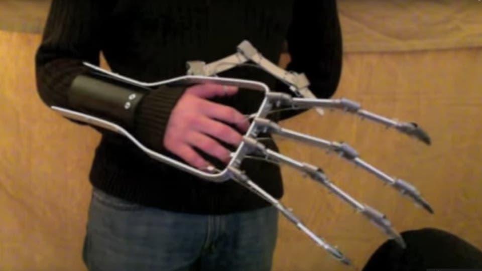 Cómo un video de 2011 cambió para siempre el mundo de las prótesis de manos