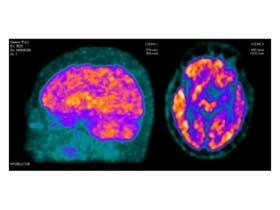 Tomografía por emisión de positrones (PET) de una paciente con Alzheimer. De perfil, en amarillo y anaranjado, se ven neuronas con buen metabolismo, pero desde arriba se observa escasa actividad meta