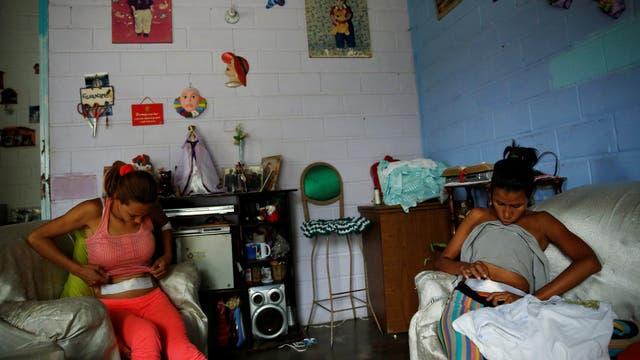 San Francisco de Yare: Andreína Jordán, de 34 años, y su hermana Alejandra Jordán, ?de 30 años, examinan los puntos posteriores a la incisión de la cirugía de esterilización