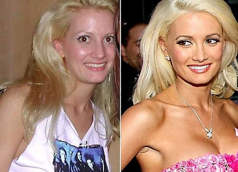 La conejita de la mansión Playboy Holly Madison no dudó en pasar por el bisturí. Foto: /www.dailycognition.com