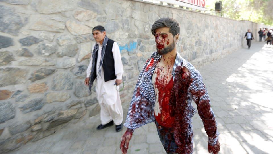 Los heridos que pueden moverse por sus propios medios van al hospital caminando. Foto: Reuters