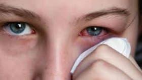 La conjuntivitis está relacionada con las alergias