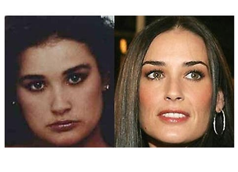 Pese a los retoques Demi Moore sigue siendo una mujer hermosa. Foto: /www.dailycognition.com