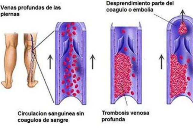 Consecuencias de una trombosis en la pierna