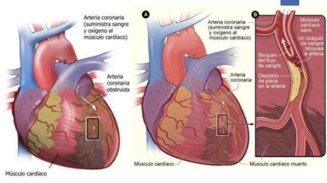 La mayoría de las personas con insuficiencia cardíaca tienen limitaciones para respirar