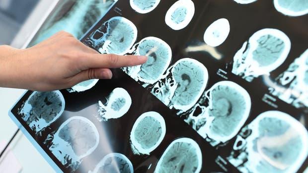 Día de la Esclerosis Múltiple
