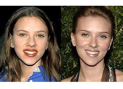 Scarlett Johansson, otra que no estaba conforme con la nariz que Dios le dio. Foto: /www.dailycognition.com