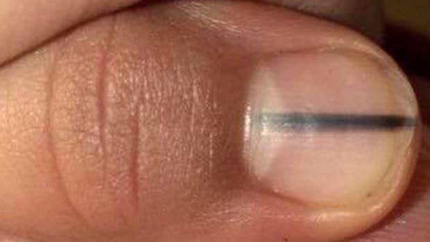 Gracias a su manicura, detectó un melanoma a tiempo