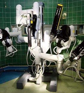 Los cuatro brazos robóticos del sistema quirúrgico Da Vinci son dirigidos por el cirujano desde otra consola