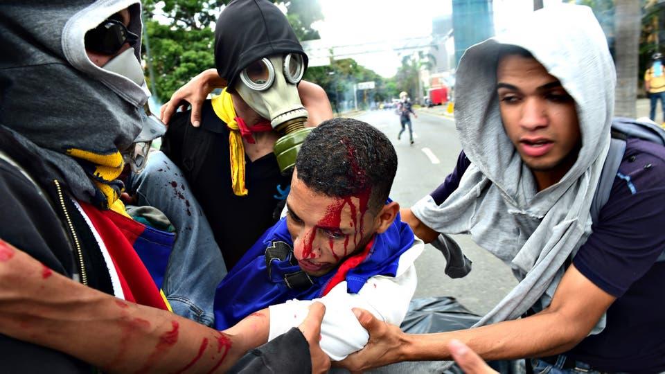 Un joven herido durante la ´protesta. Foto: AFP / Ronaldo Schemidt