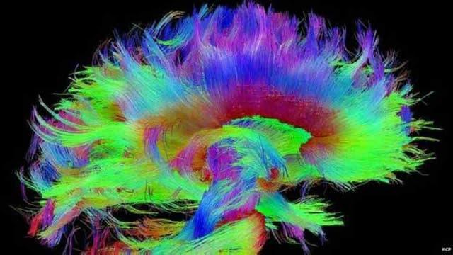 Este diagrama de las conexiones del cerebro nos ofrece una idea de cómo funciona
