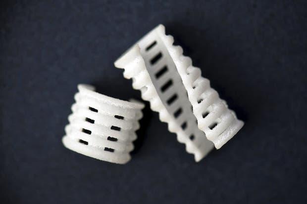 Así es el implante que se usó para ayudar a los chicos a respirar hasta que fueron suficientemente grandes