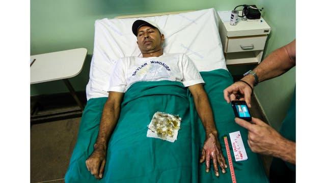 Una enfermera toma una fotografía de la piel quemada de un paciente que está siendo sometido a un tratamiento con piel tilapia en el Instituto Dr. José Frota en Fortaleza, Brasil