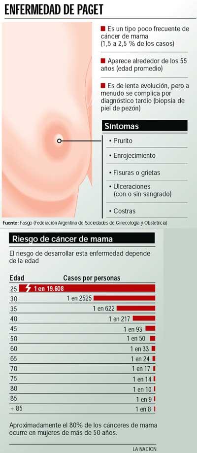 imagenes enfermedad de paget de seno