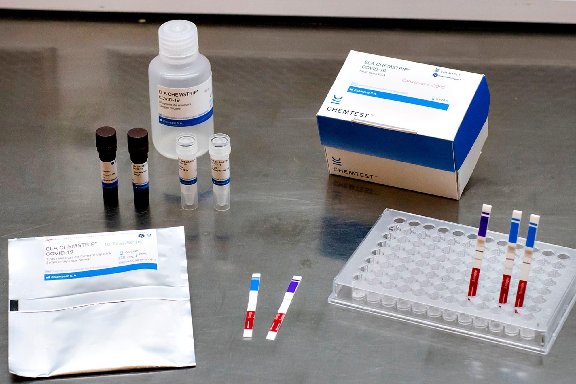 Coronavirus en la Argentina. ¿Por qué sigue siendo alta la positividad de los testeos en el país?
