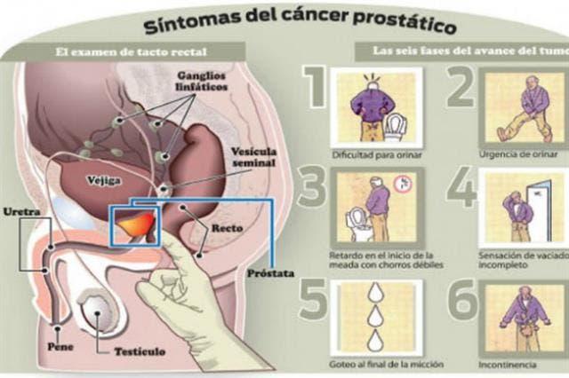 gel para exámenes de próstata