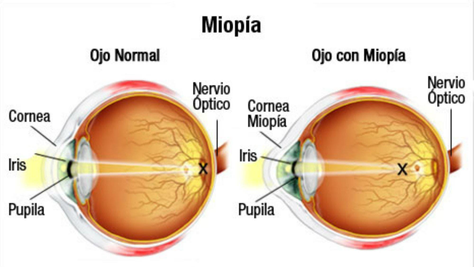 1a43639ef4 Desarrollan una lente de contacto que frena la progresión de la miopía - LA  NACION