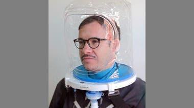 Los cascos de oxígeno ya se están usando en varias zonas del país, como ocurrió en Europa, además de la terapia de ibuprofeno.