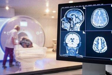 Los daños en el cerebro también han sido documentados en pacientes con Covid-19.
