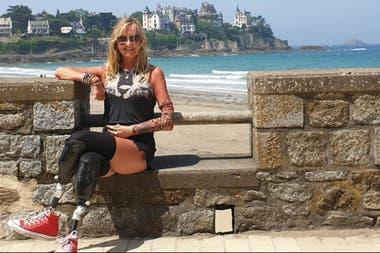 La mujer recauda dinero en redes sociales para realizarse una operación para integrar a sus piernas prótesis de última generación
