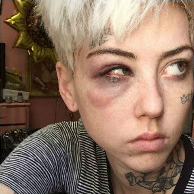 Tras varias amenazas, la artista Illma Gore asegura que fue golpeada mientras caminaba por su barrio en Los Ángeles