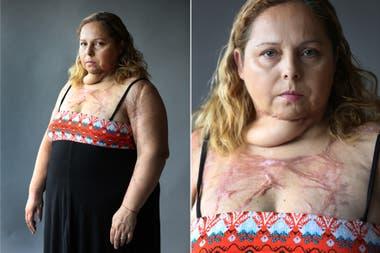 Karina Abregú sufrió un intento de femicidio: Gustavo Javier Albornoz la roció con alcohol y la prendió fuego. Fotos: Fernando Gutierrez