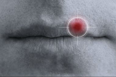 El herpes simple tipo 1 (HSV1) es más conocido por causar herpes labial