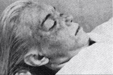 La foto del cadáver de Marilyn que fue difundida pocos días después de su muerte también forma parte del documental